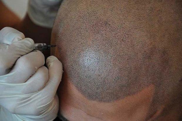 dermopigmentation tof