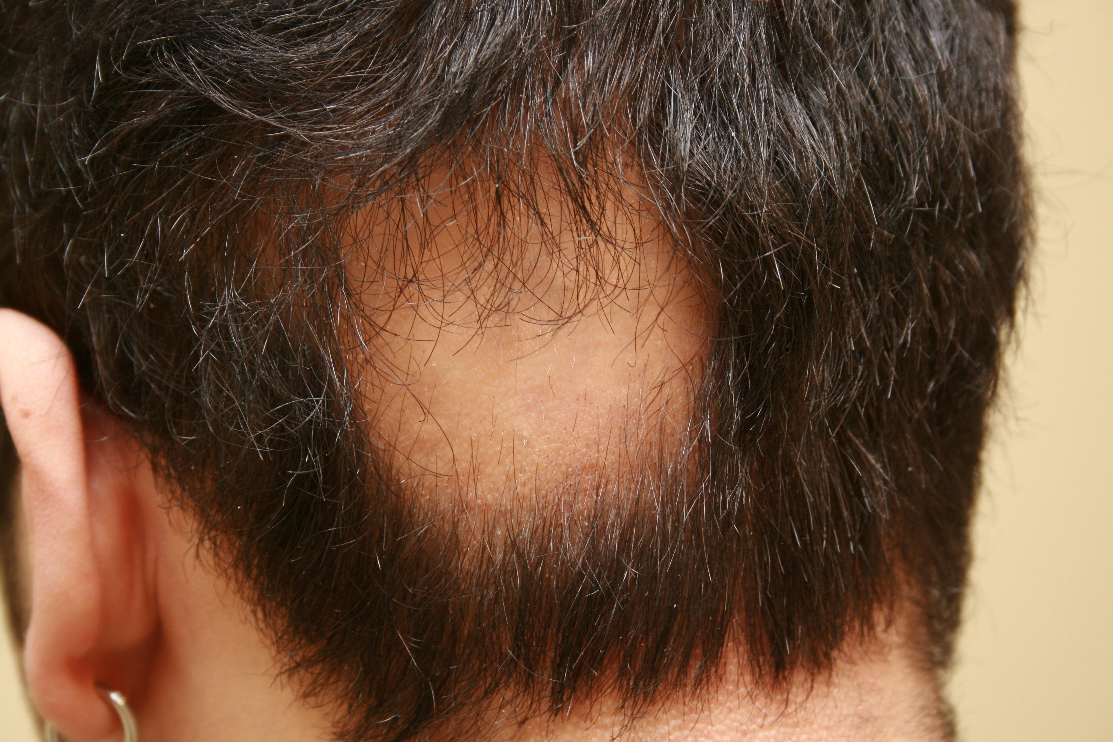 pelade cheveux repousse