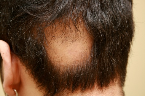 pelade-perte de cheveux-alopécie-consultantcapillaire