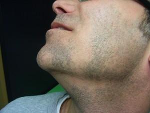 apparition de trou dans la barbe