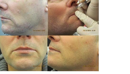 Dermopigmentation de la barbe