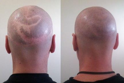 scalp-reduction-scar-repair