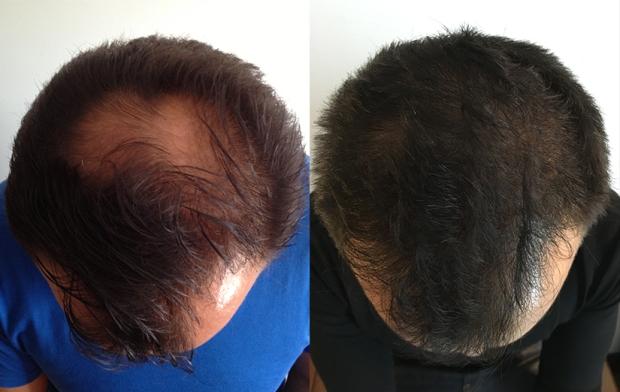 Greffe de cheveux-résutats-avant-après-consultantcapillaire