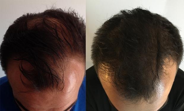 resultats-greffe-cheveux-consultantcapillaire