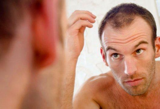 5 conseils utiles lorsque l'on souffre d'alopécie. Les remèdes contre la calvitie, la solution apportée par consultantcapillaire.
