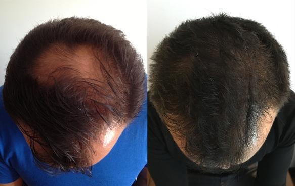 greffe-cheveux-fue-resultats-avant-apres-athenshair