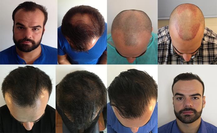 Greffe de cheveux-FUE-résultats-avant-après-Athenshair