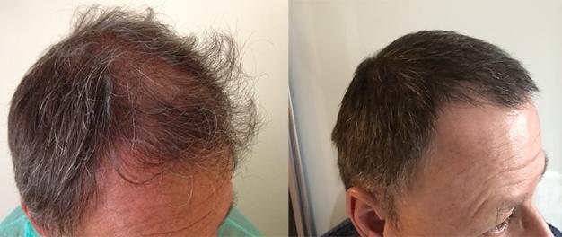 resultats-greffe-cheveux-fue-athenshair-minet