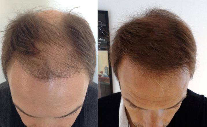greffe de cheveux fue r sultats avant apr s david blondeau consultant capillaire. Black Bedroom Furniture Sets. Home Design Ideas